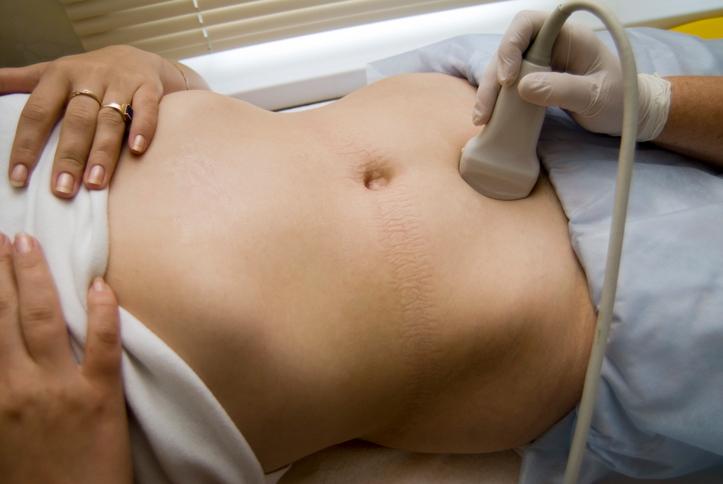 Ultrahang vizsgálatok a trimeszterek alatt