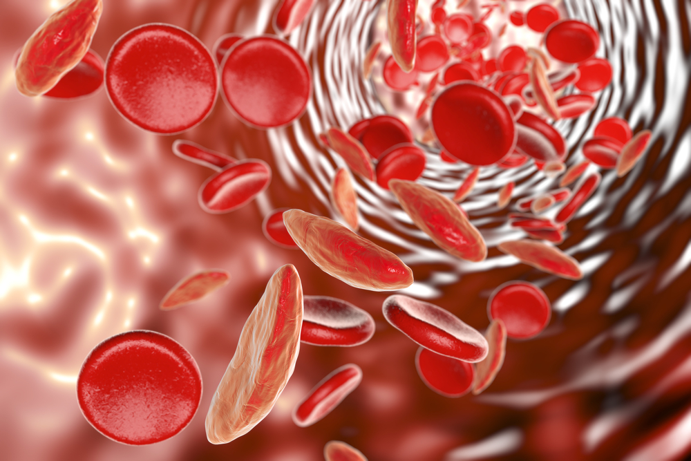 hematológiai vizsgálat